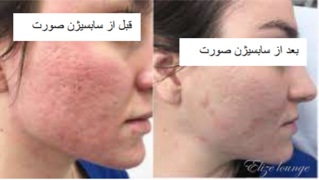 before and after subcision treatment
