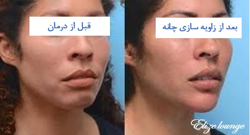 chin contouring filler