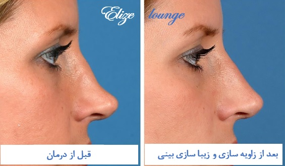 nonsurgical nose beautification